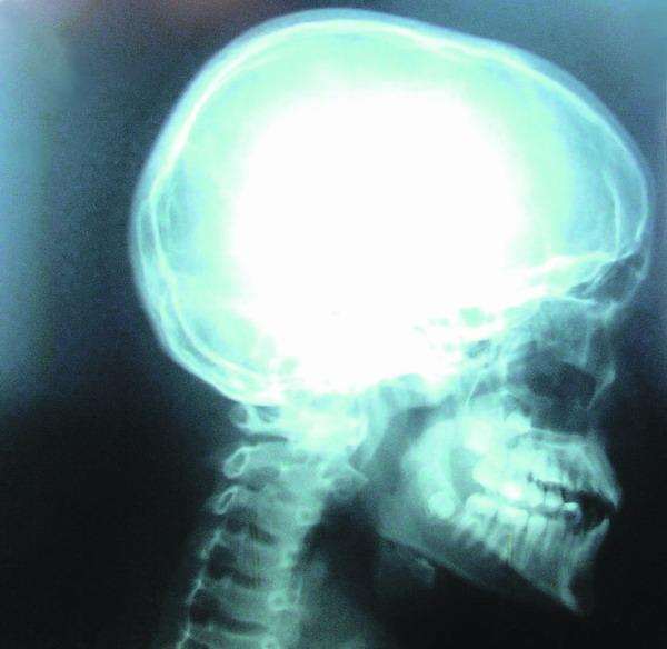 Die Halswirbelsäule gehört zu den empfindlichsten knöchernen Partien des Menschen
