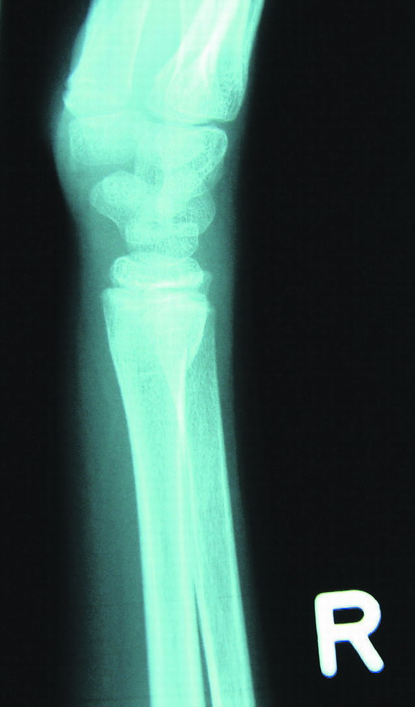 Röntgenaufnahmen zeigen genau, wo eine Verletzung sitzt