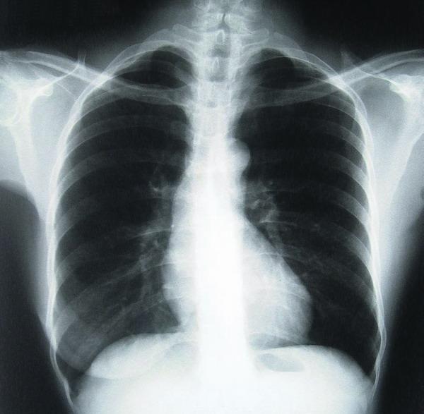 Eine Röntgenaufnahme bringt den Arzt auf die Spur des Infekts