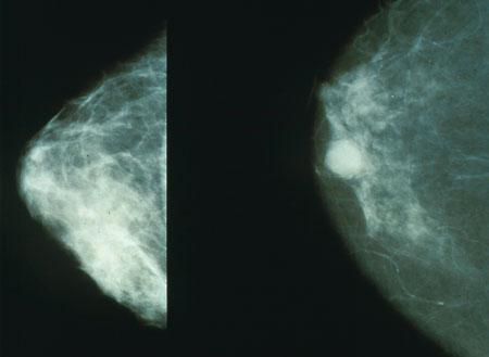 Normal (left) versus cancerous (right) mammography image