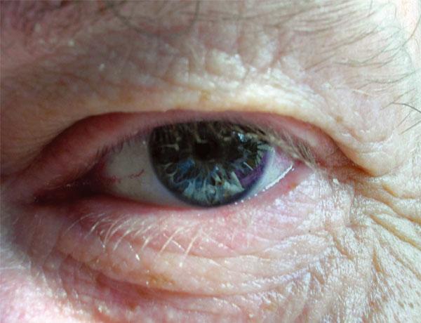 Rund um die Augen ist die Haut besonders zart und enthält wenig Talgdrüsen. Hier machen sich Fältchen zuerst bemerkbar.